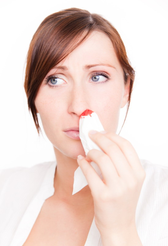 krvarenje iz nosa 1
