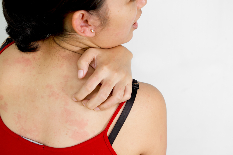 http://www.dreamstime.com/royalty-free-stock-photos-ethic-young-woman-back-itchy-skin-image18103688