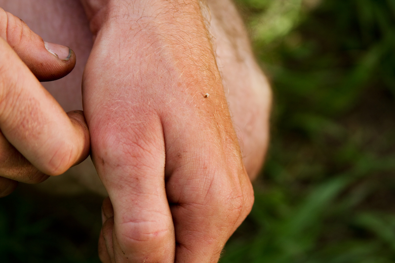 http://www.dreamstime.com/royalty-free-stock-image-bee-sting-hand-exposing-image36321766