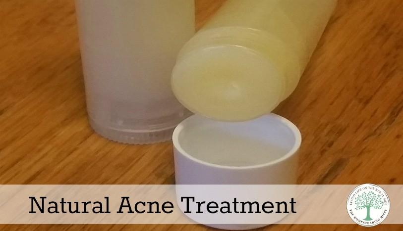 tretman za akne
