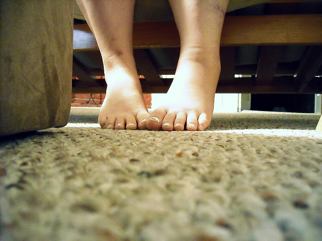 natečene noge