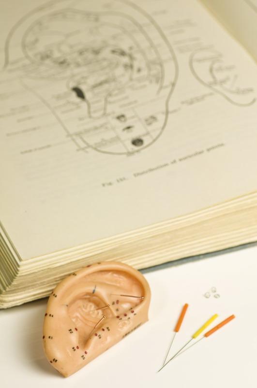 ušna akupunktura