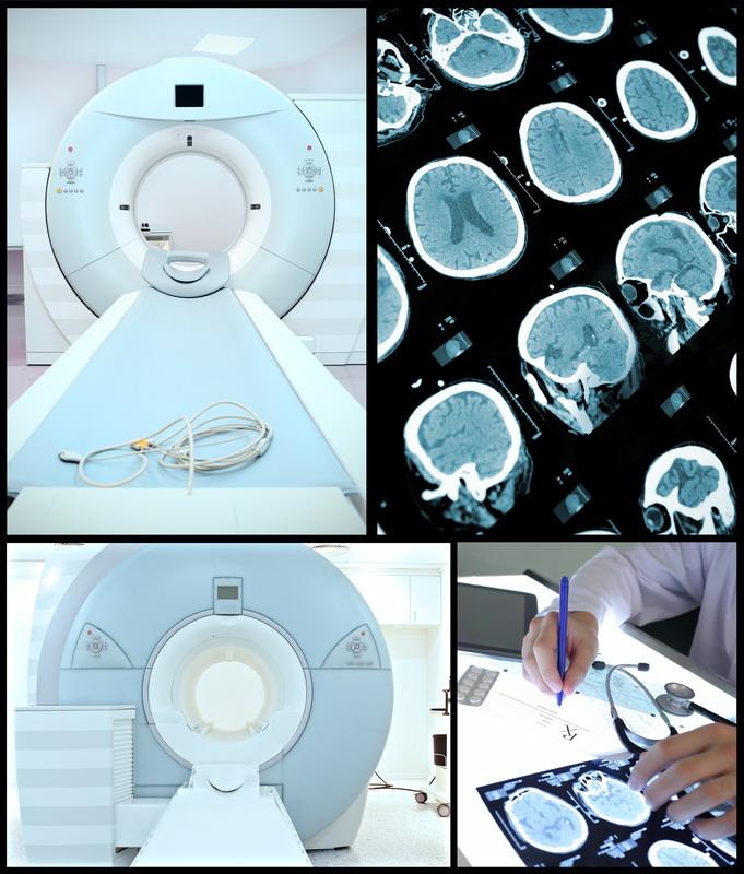 sken mozga