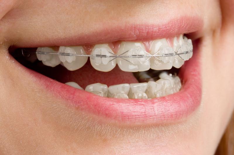 http://www.dreamstime.com/stock-photo-braces-teeth-image8711580
