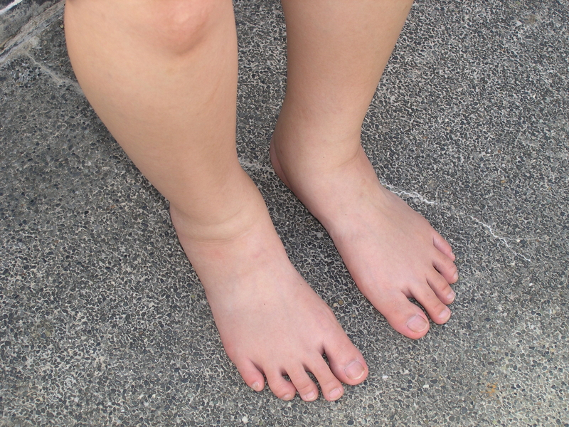 http://www.dreamstime.com/stock-photos-swollen-legs-image746723