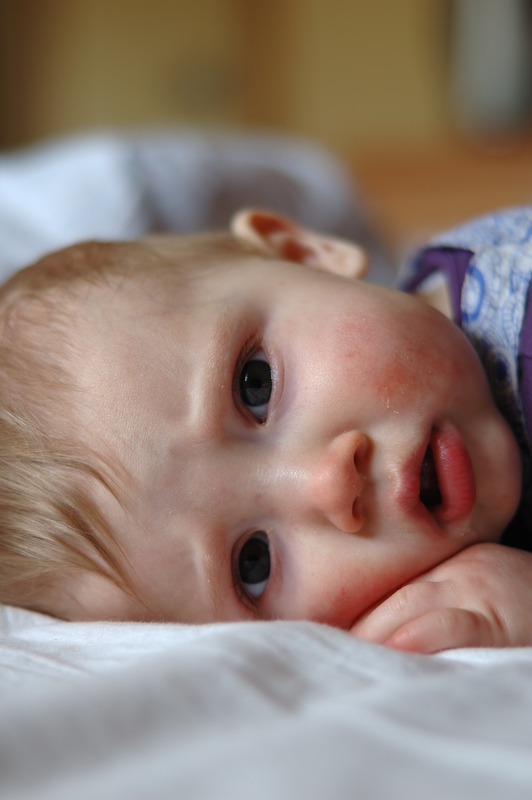 http://www.dreamstime.com/stock-photo-eight-month-old-sick-baby-lying-bed-image6087620